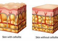 درمان سلولیت با موثرترین روش