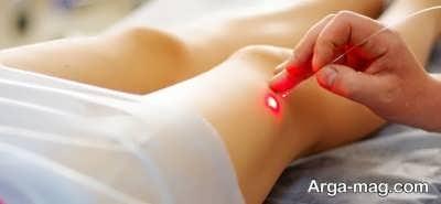 روش های درمان سلولیت