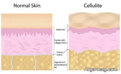 علایم و علل بروز سلولیت