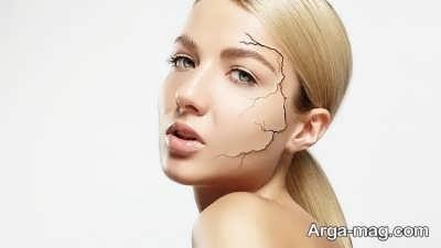 روش های خانگی و طبیعی درمان خشکی پوست
