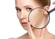 بهترین ماسک های درمان خشکی پوست