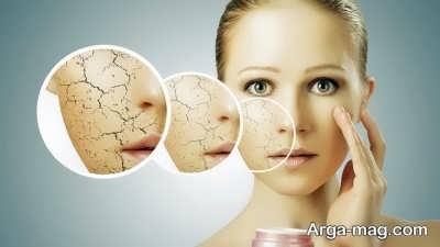 علل و علایم خشکی پوست و راه درمان