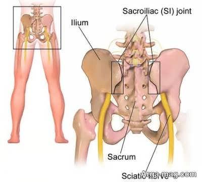 بهترین ورزش برای درمان سیاتیک