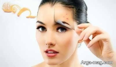 از بین بردن جوش صورت با روش های طبیعی