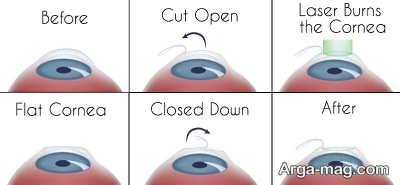 عوارض عمل جراحی لیزیک چشم