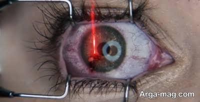 مراقبت بعد از عمل جراحی لیزیک چشم