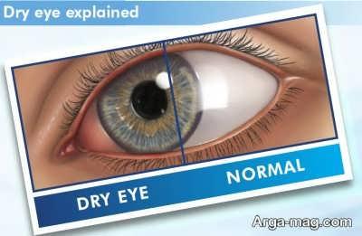 مهم ترین عارضه عمل جراحی لیزیک چشم