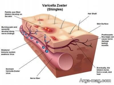 عوارض بیماری زونا چیست