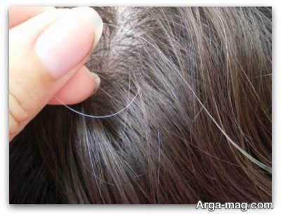 علل سفید شدن موهای سر