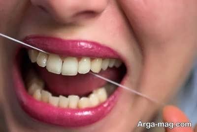 درمان عفونت لثه و دندان