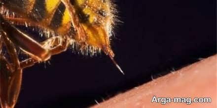 درمان زنبور زدگی