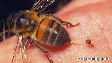 درمان زنبور گزیدگی