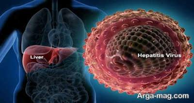 راه های درمان هپاتیت ب در خانه