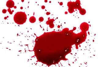 علت خون دماغ شدن از یک سوراخ بینی