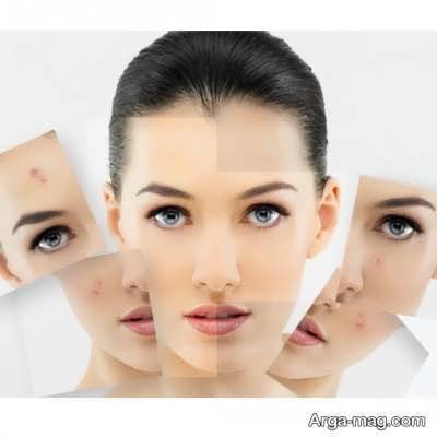 ماسک شیر کاهش دهنده رنگدانه های پوست