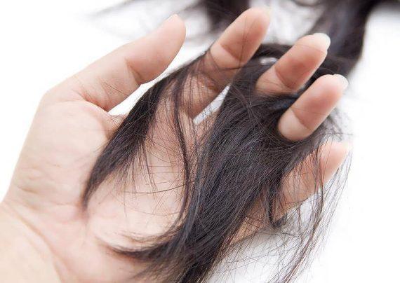 علل ریزش مو در بارداری