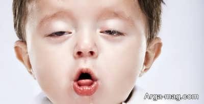 درمان سرفه خشک با راه های طبیعی در منزل