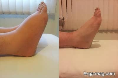 علت ورم پا چیست؟