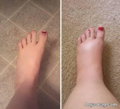 برنامه غذایی مناسب در کاهش ورم پا