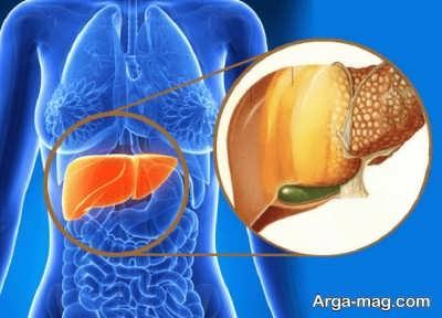 راه و روش درمان کبد چرب با خاکشیر