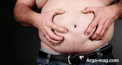 علت بزرگی شکم افراد چیست؟