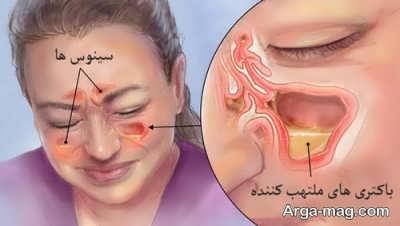 سینوزیت چیست؟ و چگونه درمان می شود؟