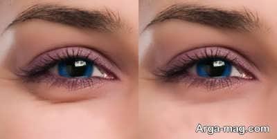درمان پف اطراف چشم