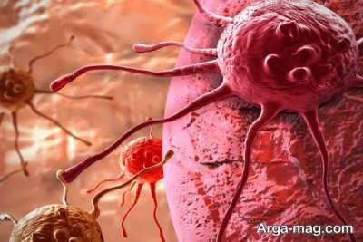 علائم سرطان ریه را بشناسید