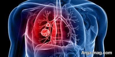 سرطان ریه چرا به وجود می آید؟
