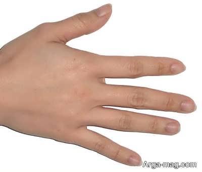 درمان تخصصی درد انگشتان دست