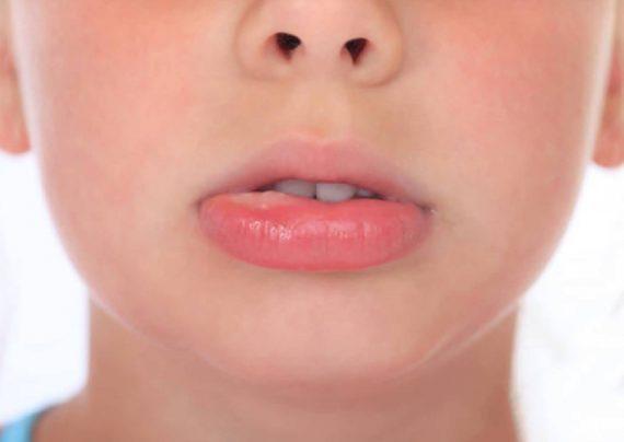 درمان خانگی آفت دهان