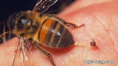 درمان های خانگی نیش حشرات