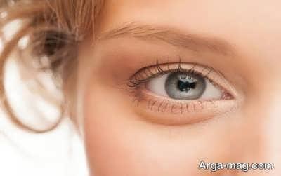 علل به وجود آمدن پف زیر چشم