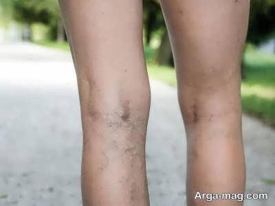 چگونه با استفاده از ورزش واریس پا را درمان کنیم؟