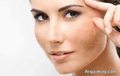 خواص ترنجبین بر سلامت پوست