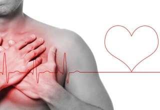 علائم سکته خفیف قلبی را بشناسید