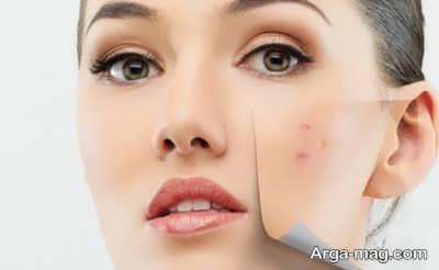 راه های موثر درمان سریع جوش صورت