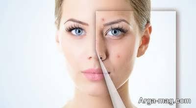 راه های درمان گیاهی جوش صورت