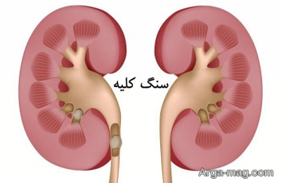 درمان های طبیعی دفع سنگ کلیه