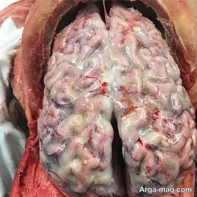 راه های درمان مننژیت