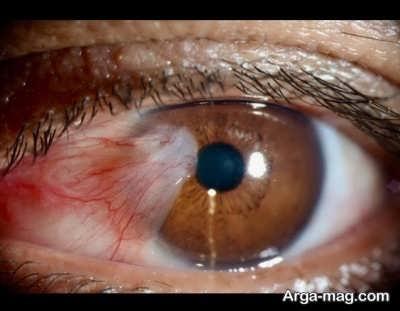 راه های درمان تومور چشمی