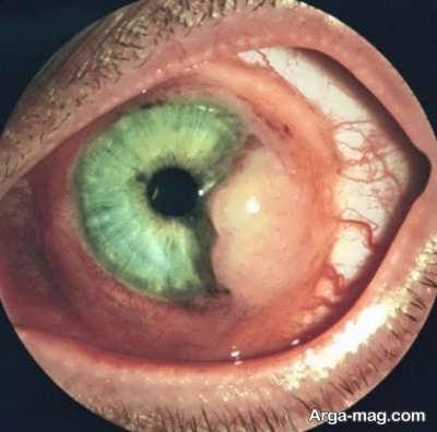 درمان تومور چشمی