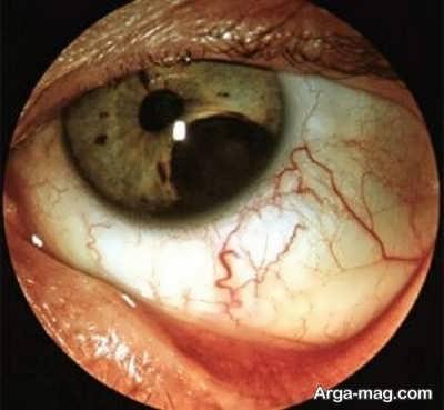 نشانه ها و علائم تومور چشمی, علل و روش های درمان