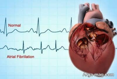 چه هنگامی باید برای تشخیص بیماری قلبی به پزشک مراجعه کرد؟