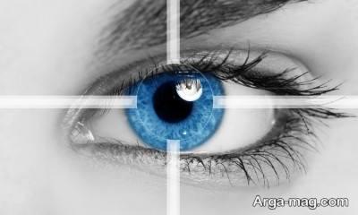 هر آنچه لازم است از علت تا درمان آستیگمات چشم بدانید