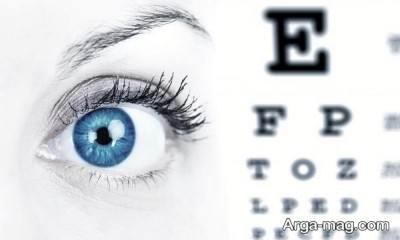 ویتامین های مفید در درمان آستیگمات چشم را بشناسید