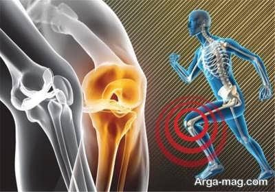 ترفند های درمان گیاهیی آرتروز