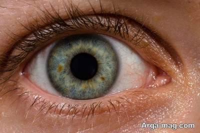راه های تشخیص و درمان سوزش چشم