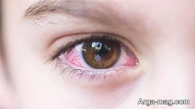 درمان سوزش چشمان
