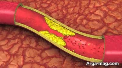 درمان سریع کلسترول خون به سادگی